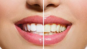 Most Effective Teeth Whitening