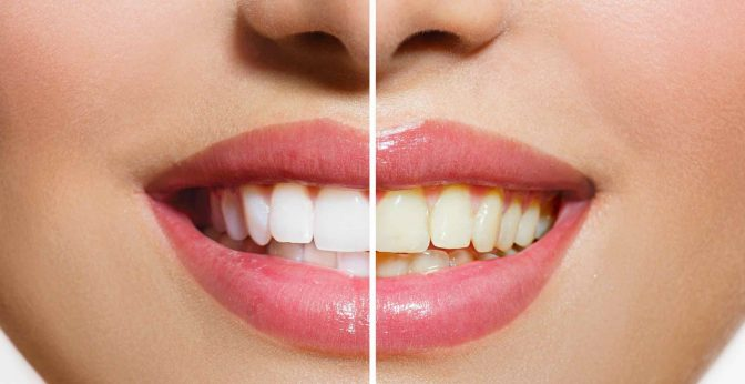 Most Effective Teeth Whitening e