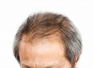how to help thinning hair