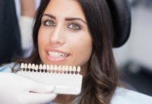 dental veneers prices